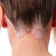 Top 5 Powerful Home Remedies For Psoriasis
