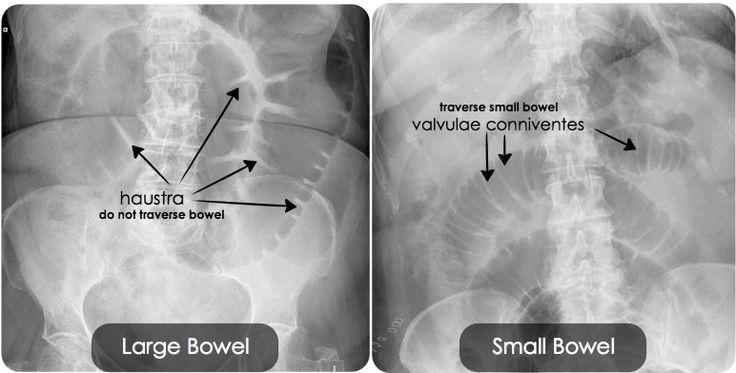 It Is Often Difficult To Decipher Large Bowel From Small