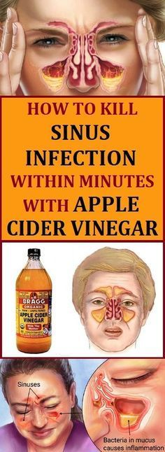 Sinus infection is an inflammation of the membrane and the tissue and it often causes fevers, headaches and pain in the face. Apple cider vinegar has many usages, so it is one of the best natural treatments for many health problems. If you have sinus problems, try out this remedies. #sinus #sinusinfection #applecidervinegar #alternativemedicine #health #pickhealthylife