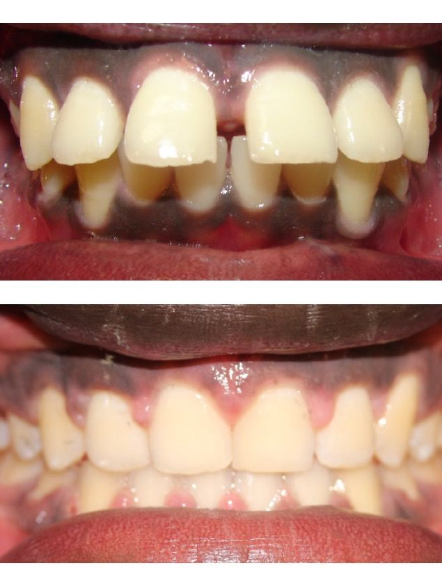 67 best Before and After Braces! images on Pinterest | Braces ...