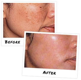 Modified Jessner Peel! Great way to rid acne, discoloration or wrinkles.  Make an appointment  www.SKINANDBODYKLINIC.com 609-542-0712 215 Sunset Road Ste 304  Willingboro, NJ 08046 #chemicalpeel #acne #discoloration #antiaging #wrinkles