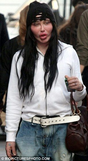 Pete Burns Reveals Horribly Disfigured Face On Day Out