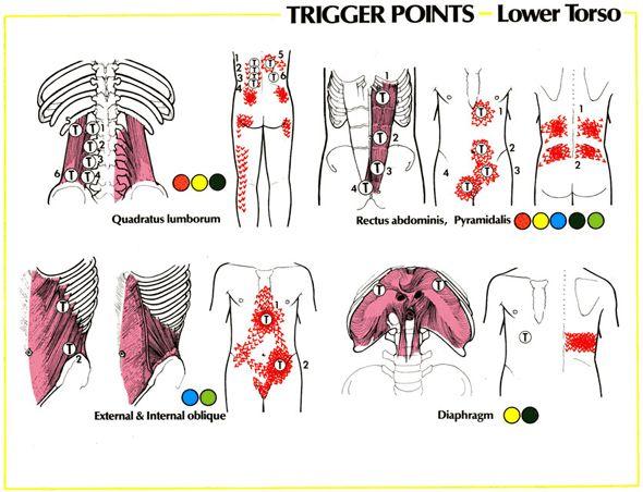 Sciatic Nerve Hip Pain | Sciatica | GadiBody.com | Neuromuscular Therapy - Strain Counterstrain ...