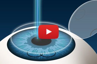 How LASIK surgery is performed