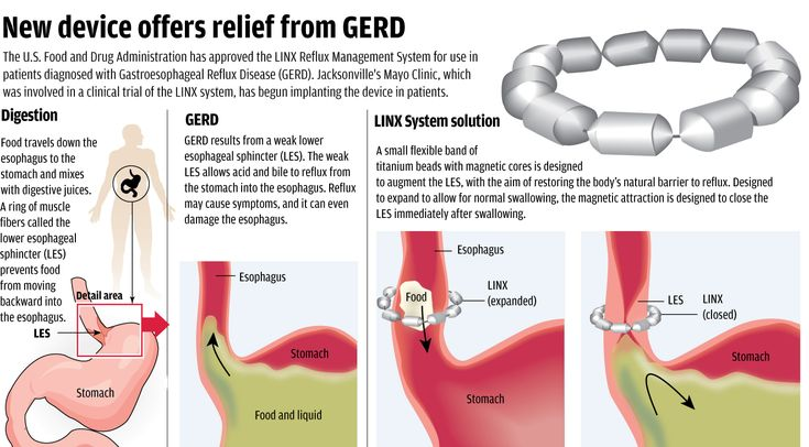 Mayo Clinic S Linx In An Infographic Cranky Gerd