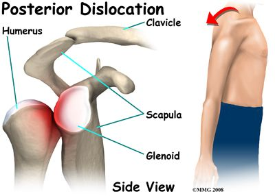 Shoulder Dislocations | Orthopedics & Sports Medicine | Houston Methodist