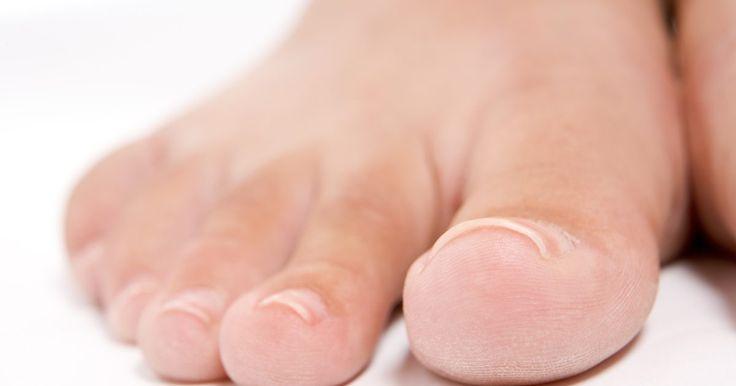 Consejo médico gratuito para el pie de atleta. El pie de atleta es causado por dermatofitos que atacan la piel de los pies. A medida que atacan la piel, el pie comienza a crecer más células de piel para protegerse a sí misma, lo que resulta en escamas gruesas, antiestéticas. El pie de atleta puede generar picazón y dolor, pero es fácil de curar y es simple evitar el regreso de los hongos.