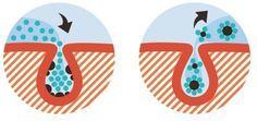 Hautpflege: Wundermittel - so haben Mitesser und Pickel keine Chance - BRIGITTE