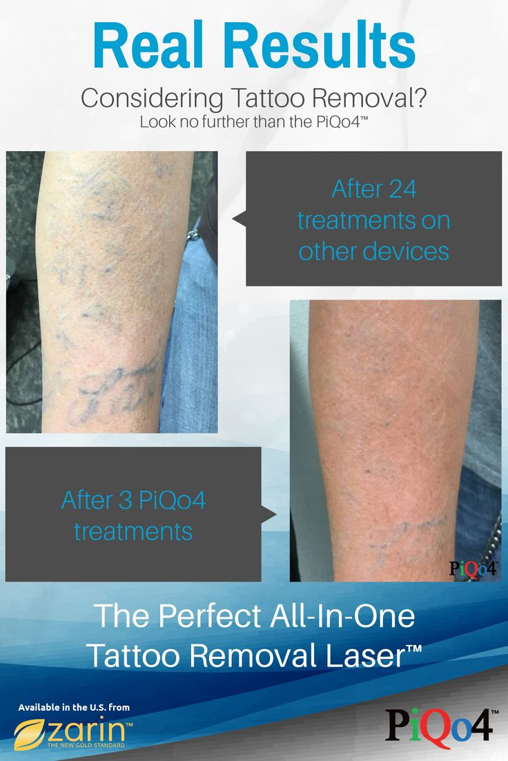 It's not even fair to compare tattoo removal lasers—the