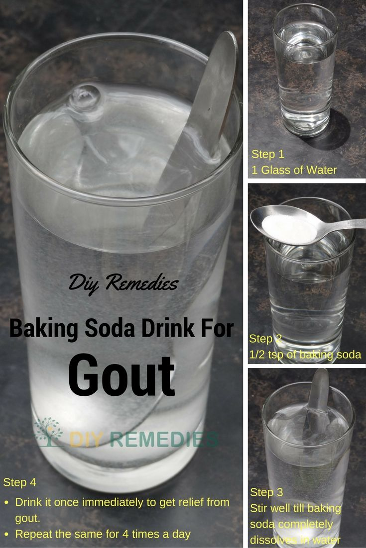 How to Treat Gout using Baking Soda