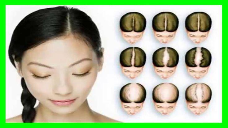 Alopecia Areata en Mujeres http://youtu.be/dUOjnFd1zGA