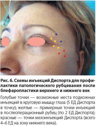 Глаза и периорбитальная область лица являются важными элементами при визуальной оценке возраста человека. Эстетическая медицина предусматривает использование целого ряда хирургических и нехирургических методов, как соло, так и в комплексе. http://estportal.com/provedenie-botulinoterapii-v-kombinacii-s-blefaroplastikoj/ #EstPortal #эстетическийПортал #косметология #иъекционныеМетодики #Диспорт #Azzalure #ботулотоксин #ботулинотерапия #блефаропластика #периорбитальнаяОбласть