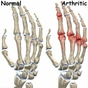 Home Remedies For Arthritis - Natural Treatments  Cure For Arthritis | Home Remedies, Natural Remedy