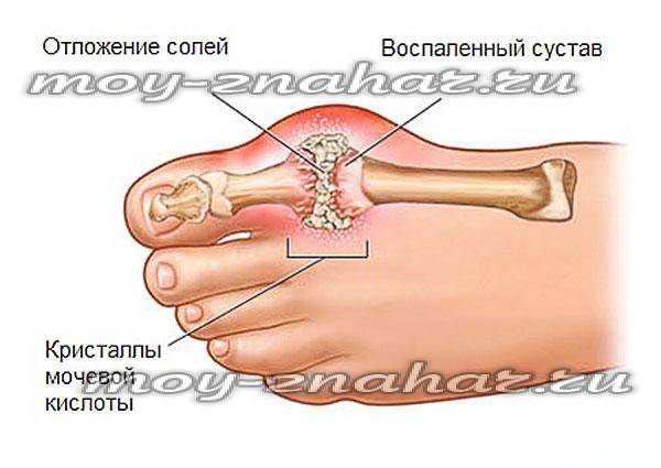 Как вывести соли и мочевую кислоту из суставов народными средствами
