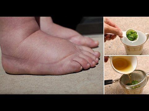 Hausmittel für geschwollene Füße - YouTube
