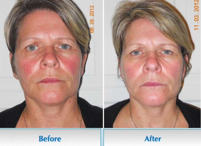 Look at the decrease in rosacea after just five weeks. Try a FREE ...