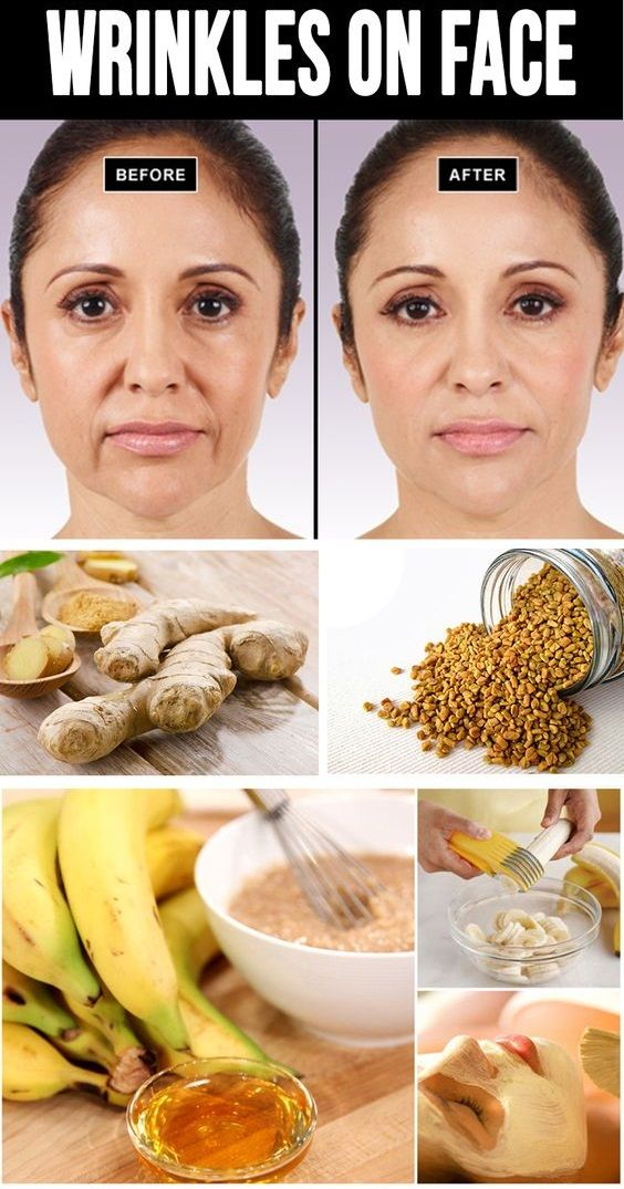 #TIP - DIY Home Remedies for #Wrinkles as follows.