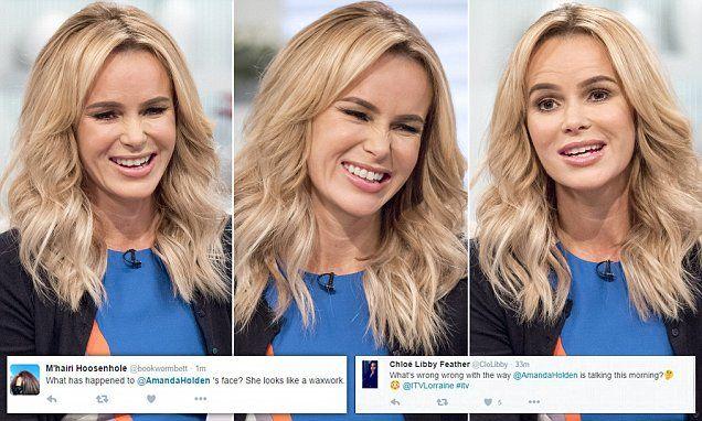 Amanda Holden's 'frozen face' is slammed by viewers on social media