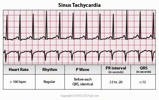 Nursing care plan sinus tachycardia