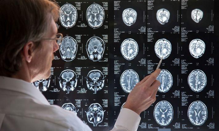 Ein Kubikzentimeter pro Jahr: Unbehandelte Schwerhörigkeit lässt Gehirn schneller schrumpfen | Pressemitteilung audibene GmbH