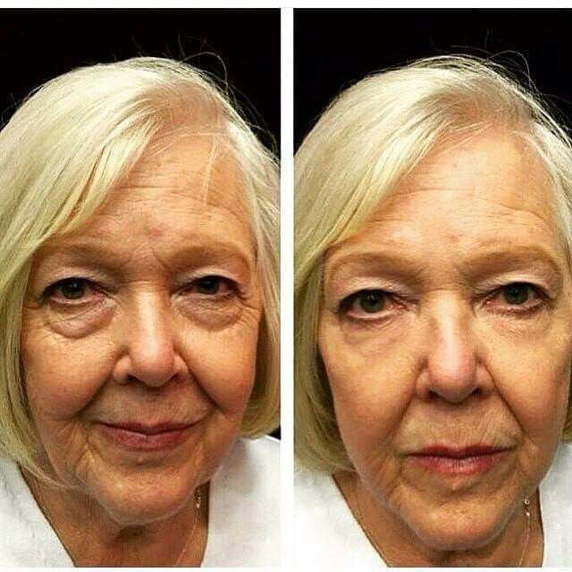 Instantly Ageless works wonders on fine lines,  wrinkles and bags under eyes!  Www.kendi73.jeunesseglobal.com for more information