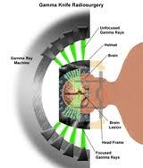 71 best ocd gamma knife surgery images on pinterest for Top knife the art craft of trauma surgery