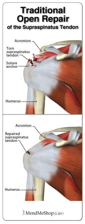 Traditional open repair surgery to repair the supraspinatus tendon of the rotator cuff. #rotatorcuffsurgery