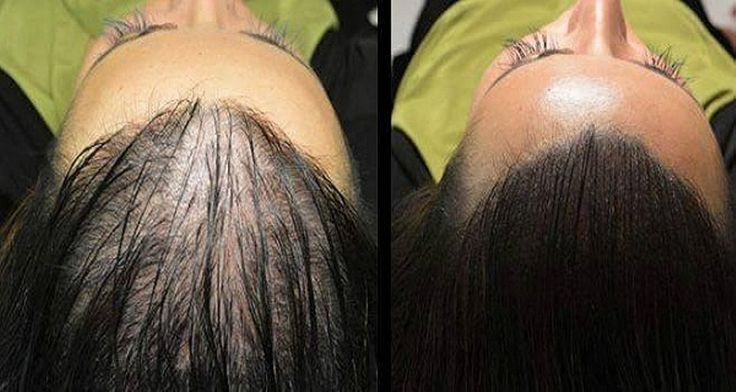 Remedy For Hair Regrowth: This Magic Recipe Will Make Your Hair Grow Like Crazy! You'll Be Surprised By The Results!