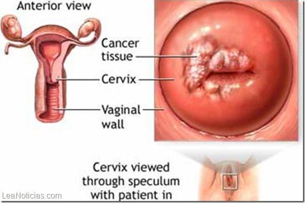 La iniciación sexual precoz eleva el riesgo de cáncer de cuello uterino - http://www.leanoticias.com/2014/02/05/la-iniciacion-sexual-precoz-eleva-el-riesgo-de-cancer-de-cuello-uterino/