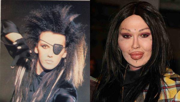 Pete Burns horrible plastic surgery