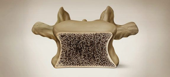 Lutter contre l'ostéoporose naturellement | Remèdes de Grand-Mère