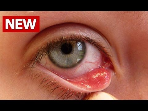 Chalazion Removal - Chalazion Surgery and Alternative Options - YouTube