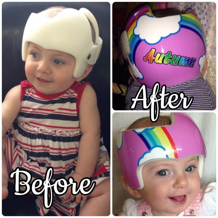 Best DOC Band Wraps Images On Pinterest Surf City Baby - Baby helmet decalsbaby helmets lee pinterest creative baby helmet and babies