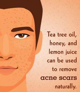 How to Clear Acne Scars Fast