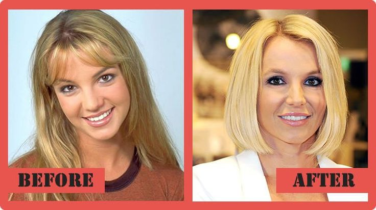 Britney Spears Plastic Surgery The Real Story Unveiled