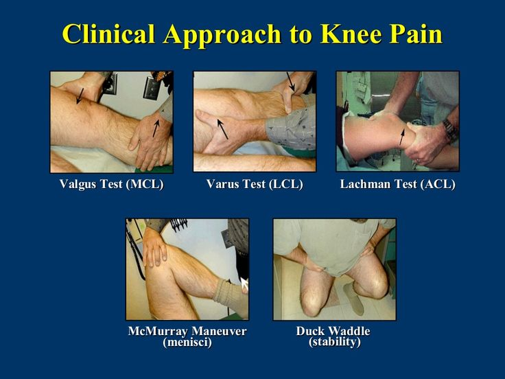 Clinical Approach to Knee PainValgus Test (MCL)     Varus Test (LCL)     Lachman Test (ACL)           McMurray Maneuver   ...