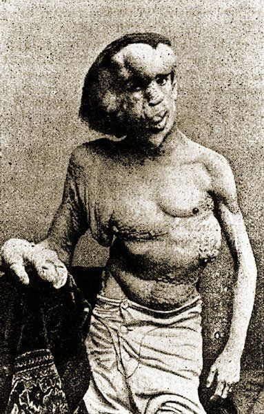 Joseph Merrick aka The Elephant Man didn't suffer from Elephantiasis. It's now though that he suffered from severe Neurofibromatois type 1 and/or Proteus Syndrome.