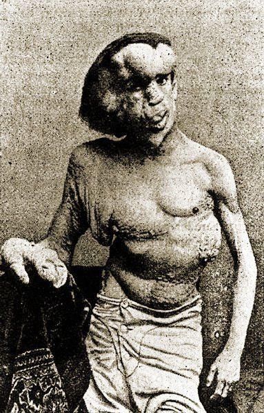 "John Merrick, aka ""The Elephant Man,"" had a terrifying appearance accompanied by an utterly fascinating life."