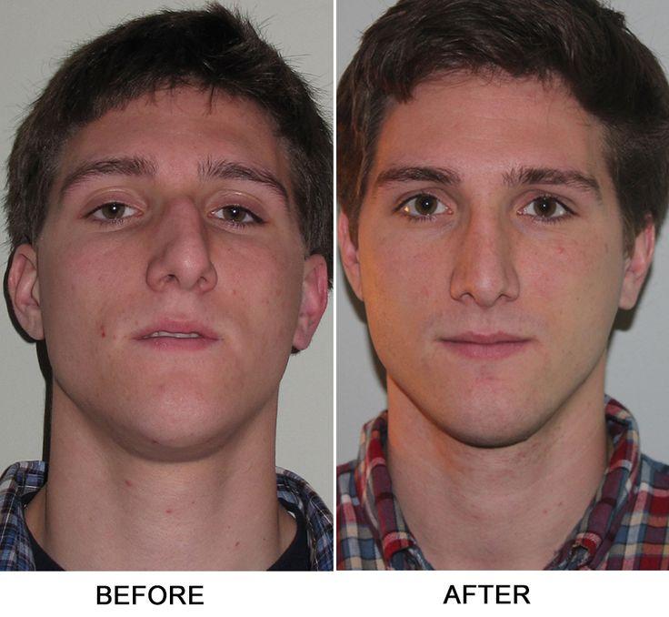 Turbinate Reduction, Septoplasty Sinus Surgery Before