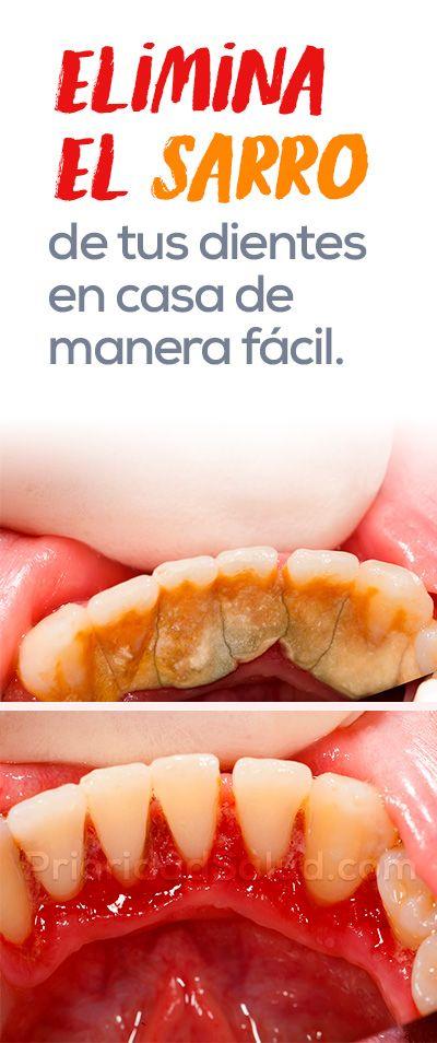 Elimina el sarro de tus dientes en casa de forma f cil salud y belleza pinterest dientes - Eliminar sarro en casa ...