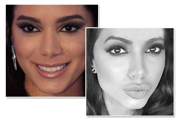 Antes e depois do preenchimento labial de Anitta (Foto: Divulgação/Reprodução Snapchat)