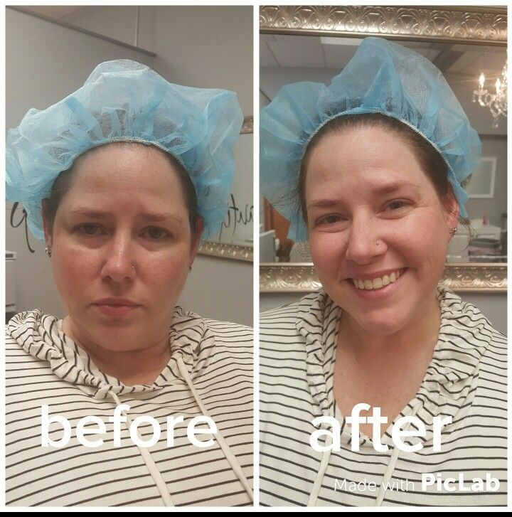 Here is an immediately before and an immediately after (with a bit of tinted moisturizer on) picture of my client that had a dermaplaning service. She's definitely happy with the look and feel of her skin:) 509-961-6555 www.bareblissyakima.com #dermaplaning #rejuvenate #dermaplane #barebliss #exfoliate #healthyskin #skinrejuvenation #skincare #exfoliation #manualexfoliation #radiantskin #exfoliateyourskin #skinbrightening #nomorepeachfuzz