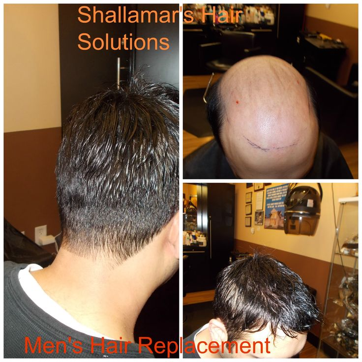 http://www.shallamarshairsolutions.com 407 507 3000 Men's Hair Replacement  in