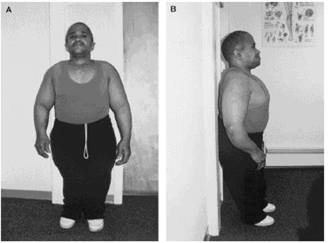 OSTEOGENESIS IMPERFECTA IN A WEIGHTLIFTER  Terry R. Yochum, DC, Stephen Kulbaba, DC, and Richard E. Seibert, DC      OBJECTIVE: To discuss the case of a 42-yr-old weightlifter with osteogenesis imperfecta.