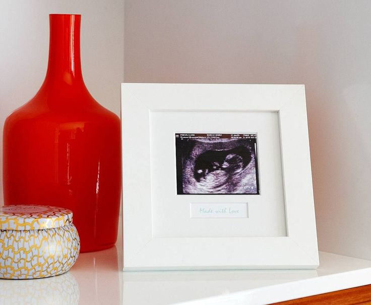 'Made with Love' Ultrasound Frame