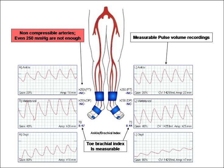 Imaging in Lower-Extremity Peripheral Artery Disease (PAD ...