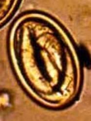 Physaloptera spp. Nematode | Parasites | Pinterest