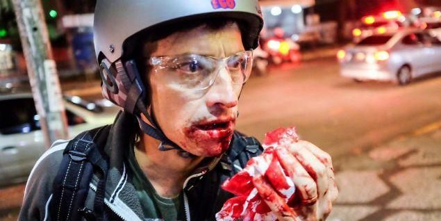 Fotógrafo é atingido durante manifestação contra Temer