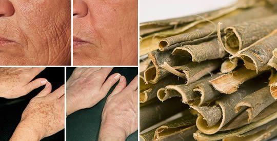 Corteccia di salice bianco: un ottimo rimedio per ringiovanire la pelle   Rimedio Naturale