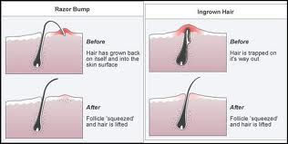 Door ontharen (epileren bv) krijg je vaak ingegroeide haren. Regelmatig scrubben voorkomt het niet, maar je hebt er wel minder last van. Met een epileerpincet eruit halen, en daarna de huid ontsmetten en goed verzorgen...